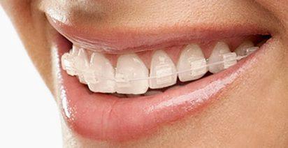 Con el mismo principio que los metálicos, los de porcelana son blanquecinos y quedan más disimulados sobre los dientes. Son uno de los brackets estéticos más elegidos por los adultos por su excelente relación precio-calidad.