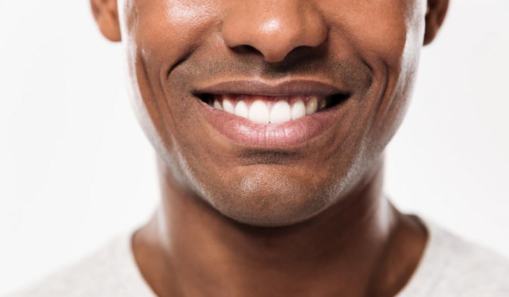 blanqueamiento-dg-dental
