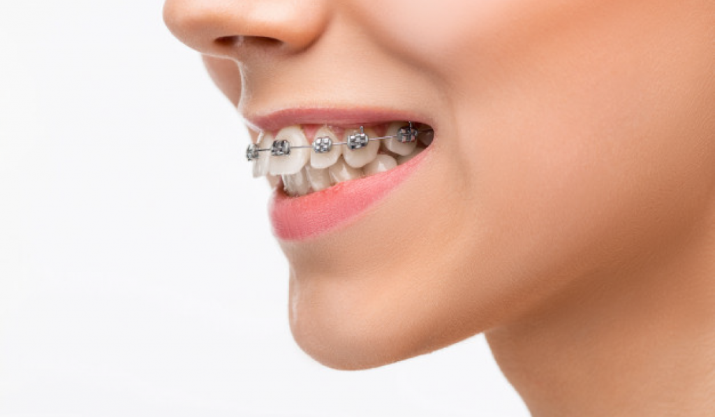 ortodoncia-dgdental