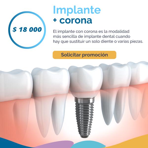 Implante más corona