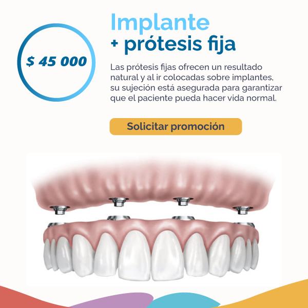 Implante más prótesis fija