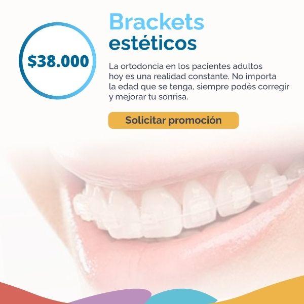 brackets-esteticos-aparatos-dg-dental.com.ar