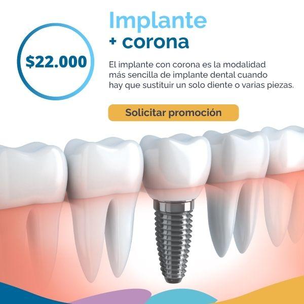 implante-corona-dg-dental.com.ar