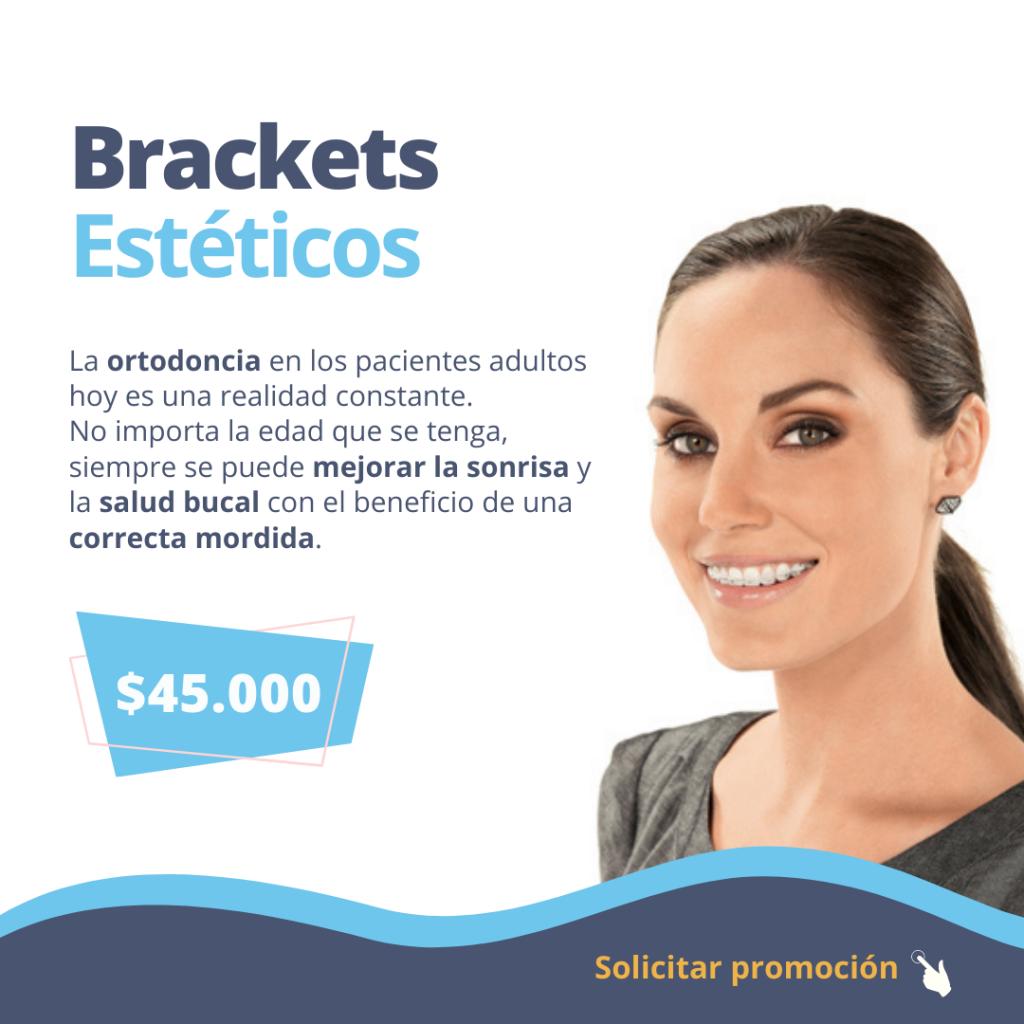 brackets-esteticos-ortodoncia-dgdental.comar-odontologia-caba-almagro