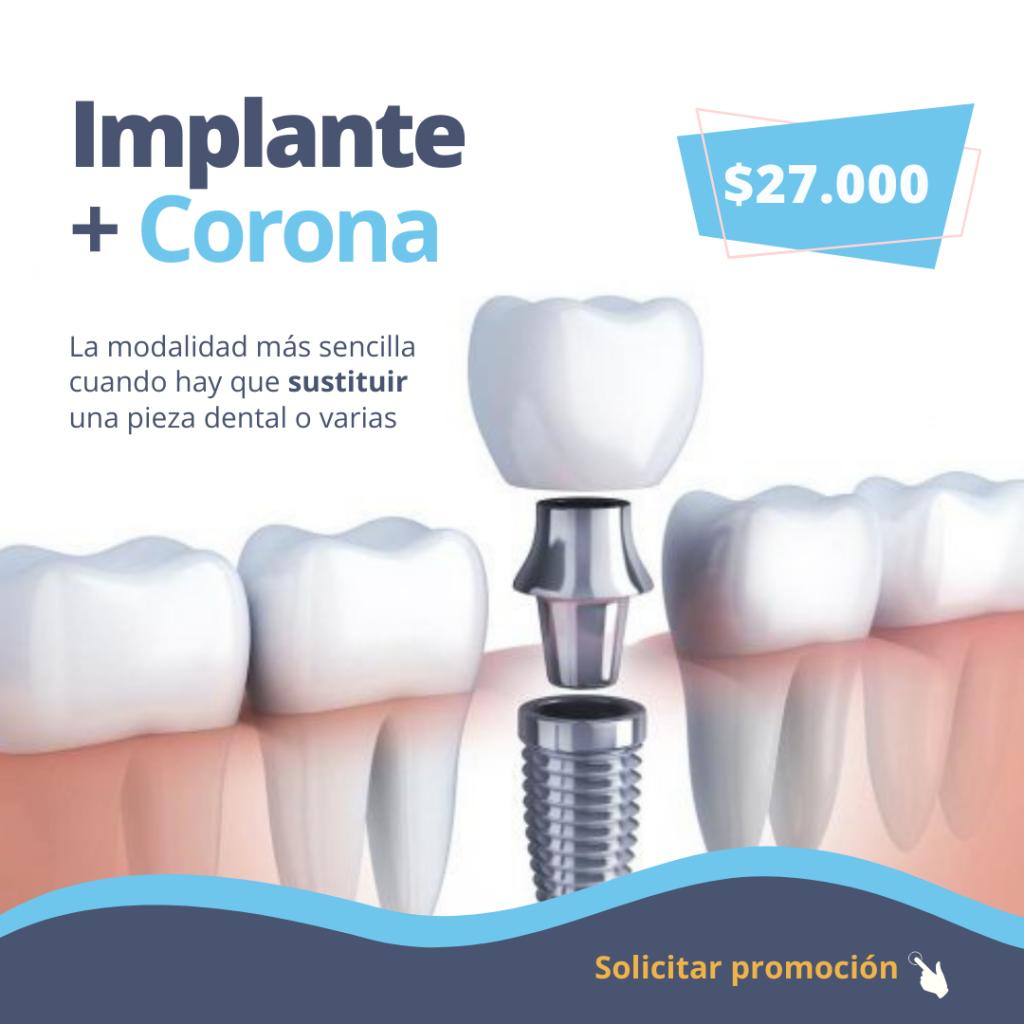 implante-dental-dgdental.comar-odontologia-caba-almagro