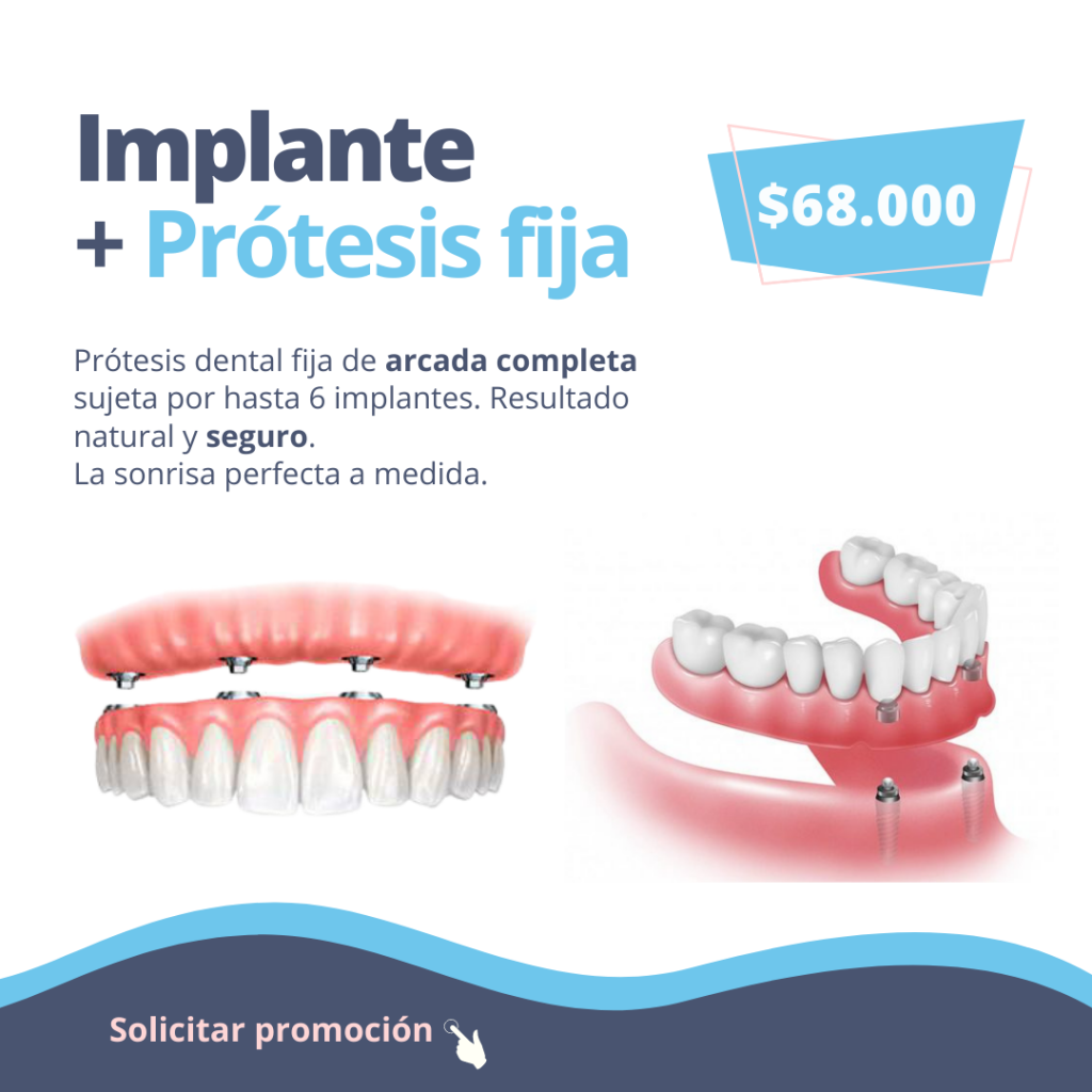 implante-dental-protesis-fija-dgdental.comar-odontologia-caba-almagro
