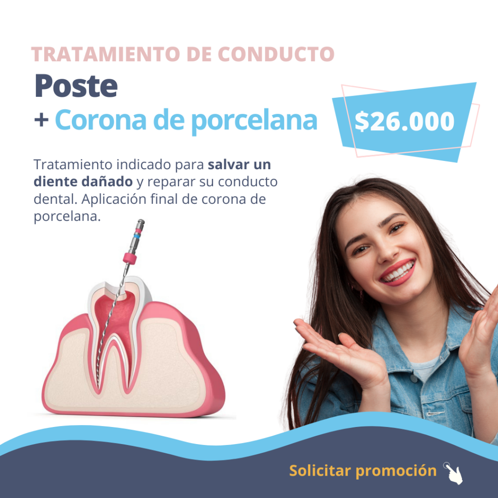 tratamiento-conducto-diente-roto-dolor-diente-dgdental.comar-odontologia-caba-almagro