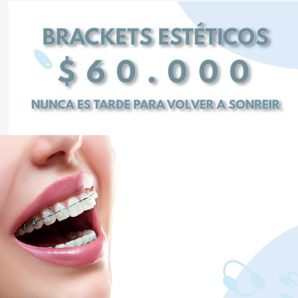 BRACKETS ESTETICOS - JULIO