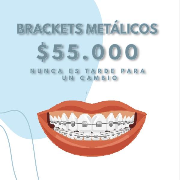 BRACKETS METALICOS - JULIO
